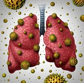 Lung allergy medical concept as human lungs with airborne pollen grains infecting the breathing organ as an asthma trigger or allergic reaction symbol with 3D illustration elements. poster