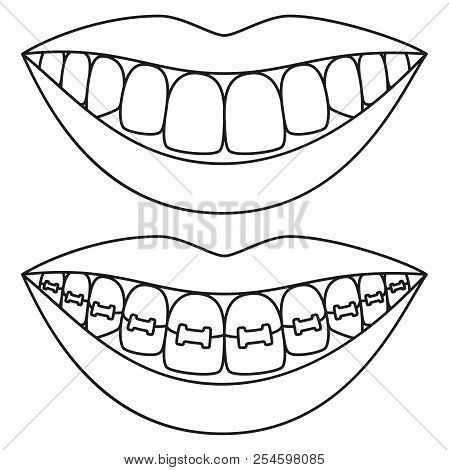 Line Art Black And White Teeth Aligning Concept. Before And After Toothy Smile With Braces. Coloring