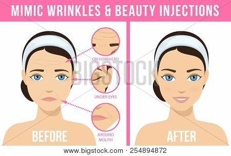 Women S Anti-aging Skin Care. Different Types Of Facial Wrinkles. Woman Before And After Botox Injec