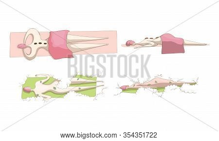 Naked Woman Lying On Spa Table With Her Face Down In Spa Salon And Enjoying Procedures Vector Set