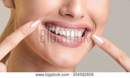 Toothcare. Unrecognizable Smiling Girl Pointing At Smile And Healthy White Teeth Posing On Beige Stu
