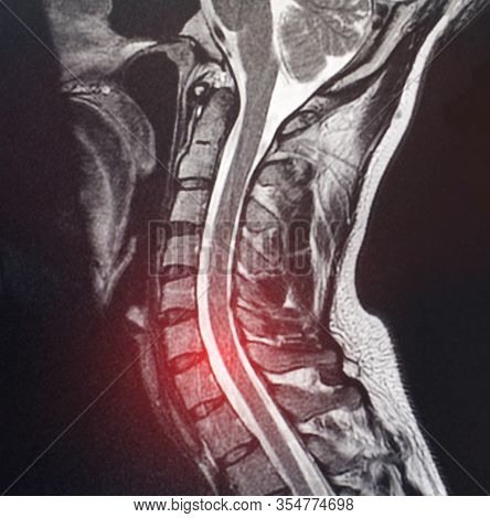 Magnetic Resonance Image Of The Cervical Spine Of A Patient Who Has Pain And Numbness In The Neck. T