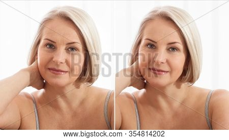 Middle Age Close Up Woman Happy Face Before After Cosmetic Procedures. Skin Care For Wrinkled Face.