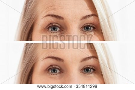 Middle Age Close Up Woman Face And Eyes Before After Cosmetic Procedures. Skin Care For Wrinkled Fac