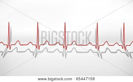 Heartbeat ECG. Volumetric Concept