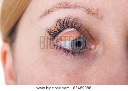 Eyelid Of A Woman