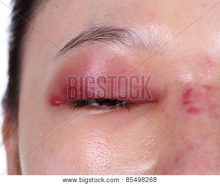 Close-up Of Upper Eye Lid Swell After Nose Job