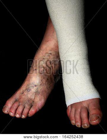 Leg. Varicose  veins. Phlebeurysm. Thrombophlebitis. Elastic bandage