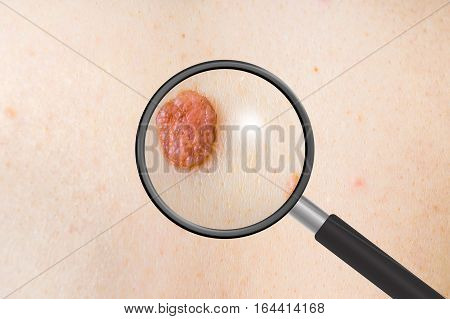 Dermatologist doctor examines a birthmark of patient checking benign moles with magnifying glass poster