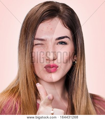 Portrait of young woman with problematic skin without and with makeup