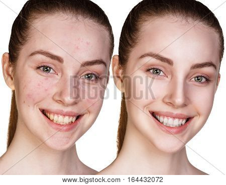 Woman with acne before and after treatment over white background