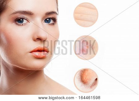 Concept of skincare. Skin of beauty young woman before and after the procedure