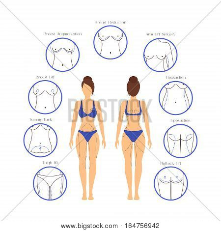 Plastic Surgery Woman Body Infographics for Posters and Brochures Liposuction Procedures Operation Correction. Vector illustration