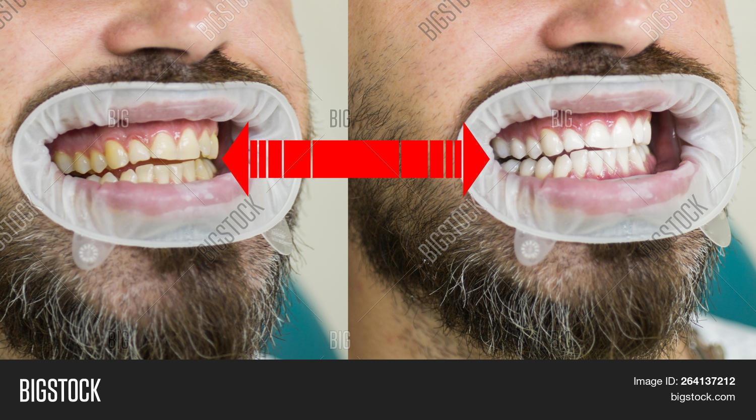 Smile Before After Image Photo Free Trial Bigstock