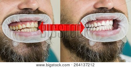 Smile Before And After Bleaching. Dental Care And Whitening Teeth. Result Of Teeth Whitening. Teeth