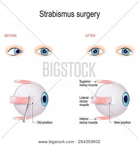 Strabismus Surgery. Eye muscle recession. Extraocular Muscle Anatomy. surgeon alters the attachment site of the muscle, cutting the muscle from the surface of the eye and reattaching it further back on the eyeball, away from the front of the eye. poster