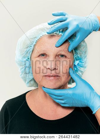 The Surgeon Doing Skin Check On Mid Age Woman Before Plastic Surgery. Senior Female Model. Plastic S