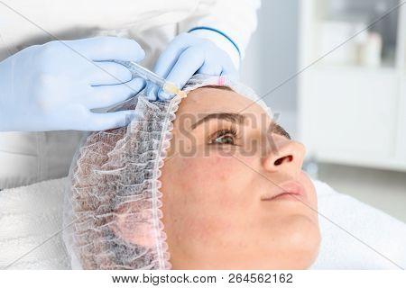 Woman undergoing face biorevitalization procedure in salon, closeup. Cosmetic treatment poster