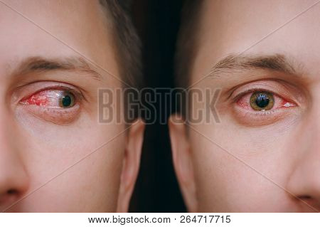 Close Up Annoyed Red Blood Human Male Eyes Affected By Conjunctivitis Or After Flu Cold Allergy. Loo