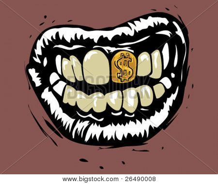 Mouth with gold teeth.