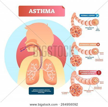 Asthma Vector Illustration. Lungs And Bronchi Disease With Breathing Problems Diagram. Asthmatic And