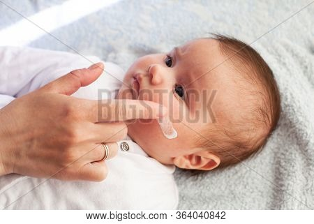Baby With Atopic Dermatitis Getting Cream Put. Care And Prevention Of Eczema.