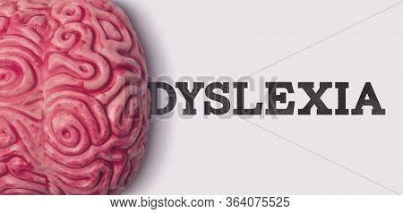 Dyslexia Word Next To A Human Brain Model
