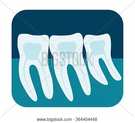 X-ray Of Human Teeth. Three Healthy Molars On An X-ray. Vector Illustration