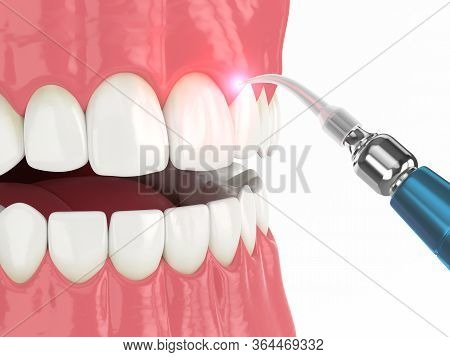 3d Render Of Dental Diode Laser Used To Treat Gums. The Concept Of Using Laser Therapy In The Treatm