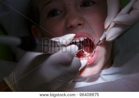 Girl Getting Her Teeth Polished