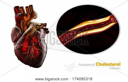 Heart as example, Blocked blood vessel, artery with cholesterol buildup, 3d Illustration isolated white