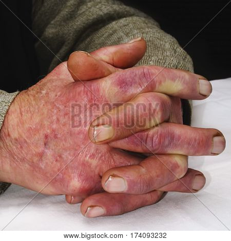 Closeup of the wrinkled hands of an old caucasian man wearing a green sweater