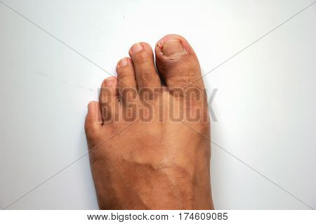 Figure out the nail Accident nail trauma bleeding toe nails Foot ulcers figure out a nail Onychocryptosis