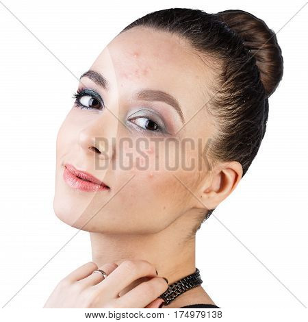 Comparison portrait of woman with problematic skin before and after treatment and make-up.