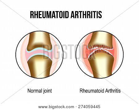 Normal And Rheumatoid Arthritis Sore Joints. For Rheumatoid Arthritis Advertising, Medical And Study