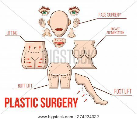 Plastic Surgery Concept Banner. Cartoon Banner Of Plastic Surgery Vector Concept For Web, Giftcard A