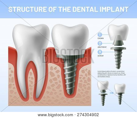Dental Teeth Implant. Implantation Procedure Or Tooth Crown Abutments. Health Care Vector Illustrati