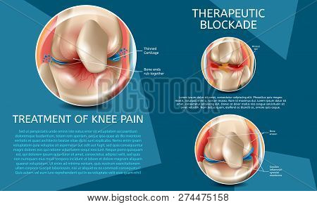 Realistic Illustration Treatment Of Knee Pain. 3d Vector Image Banner Therapeutic Blockade Human Kne