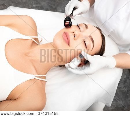 Beautician Doing Skin Treatment Using A Microneedle Derma Roller. Woman Getting Procedure Skincare,
