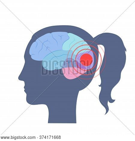 Vector Isolated Illustration Of Pain, Inflammation Or Tumor In Human Adult Female Brain Anatomy. Occ