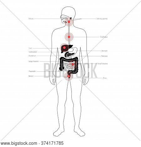 Flat Vector Isolated Illustration Of Pain And Inflammation In Adult Human Body. Digestive System Ana