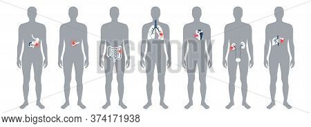 Set With Flat Vector Isolated Illustrations Of Pain And Inflammation In Adult Human Body. Digestive