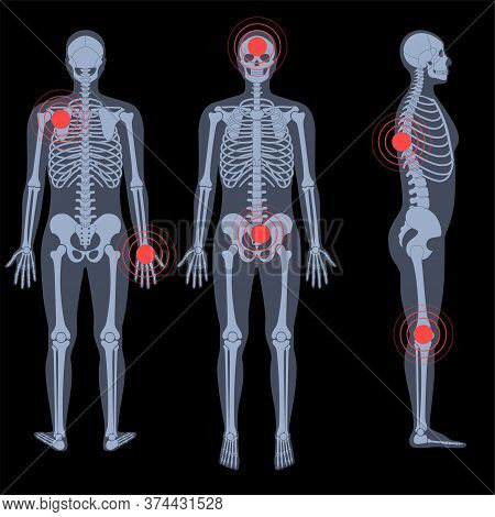 Human Man Skeleton Pain, Fracture Or Inflammation In Front, Profile And Back On X Ray View. Vector I