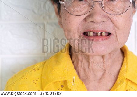 Asian Elderly Woman Over 70 Years Old Be Smile With A Few Broken Teeth Here Have Problem Of Ability