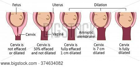 Cervical Effacement And Dilation During Labor Or Delivery. Cervix Changes From Not Effaced And Dilat