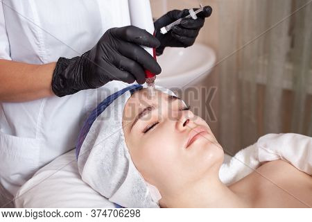 The Beautician Performs The Procedure Micronidling, Dermopen