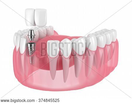 3d Render Of Jaw With Dental Incisor Cantilever Bridge Supported By Implant