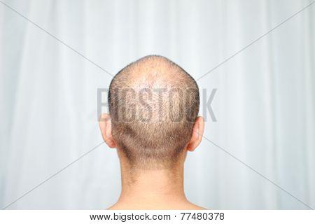 back shot of man head of thin hair poster