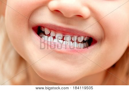 baby smile close. White-toothed baby smile. healthy teeth. Предложить исправление