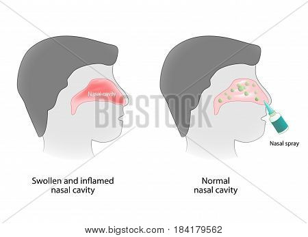 inflammation of the nasal cavity and nasal cavity healthy. Nasal spray. Human anatomy